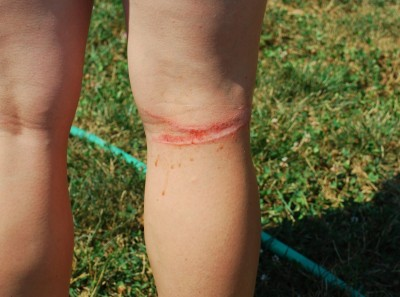 Thanks Leash Your Fitness for the Photo.  This is just what my burn looked like